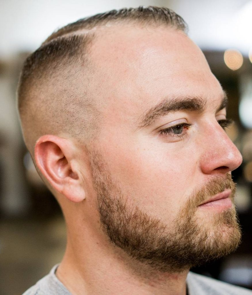 15 Amazing Balding Men Hairstyles For Hair Makeover