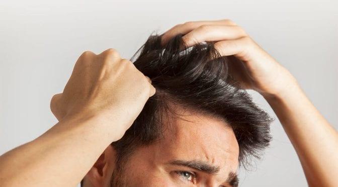 Common scalp problems